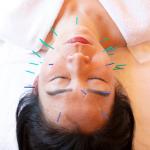 鍼灸全身治療&美容鍼(フットバス付き)